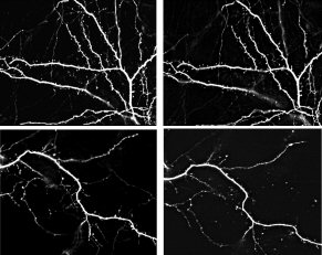 Four images used in Dendritic Spines Lab lesson